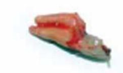 Exodoncia atraumática del diente 14