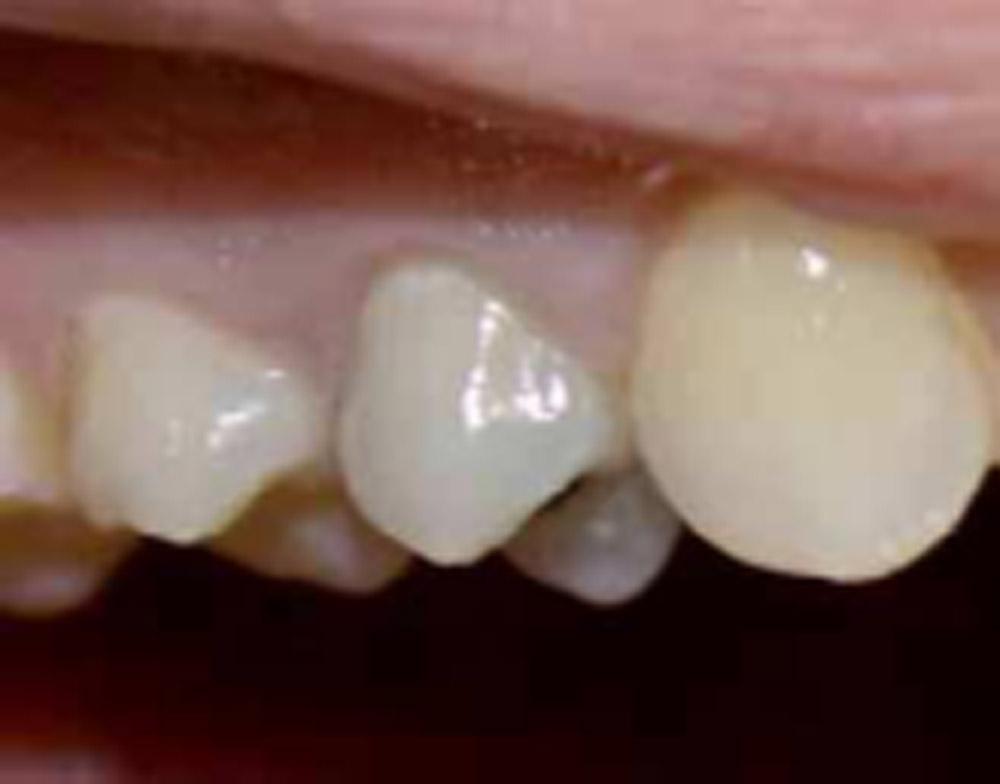 Fractura del diente