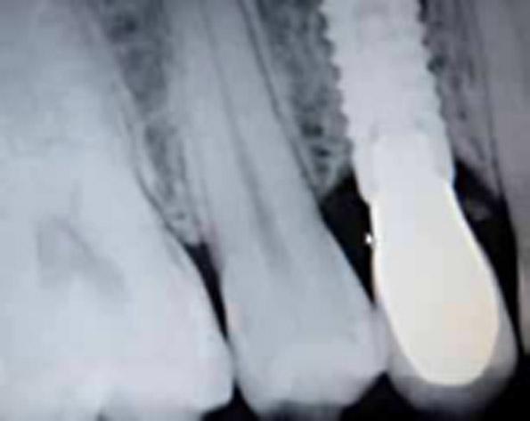Radiografía con rehabilitación protésica del diente 14.