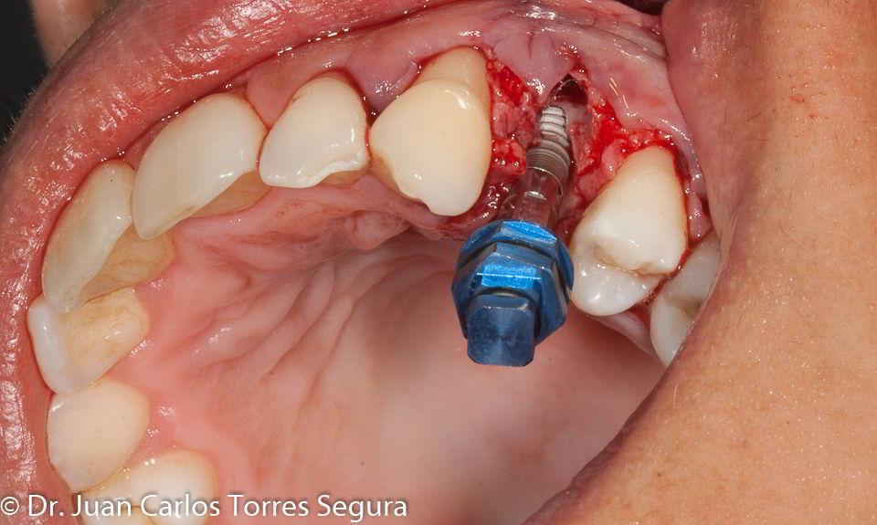 Implante post-extracción, regeneración ósea y carga inmediata con Implante NeO de AlphaBio