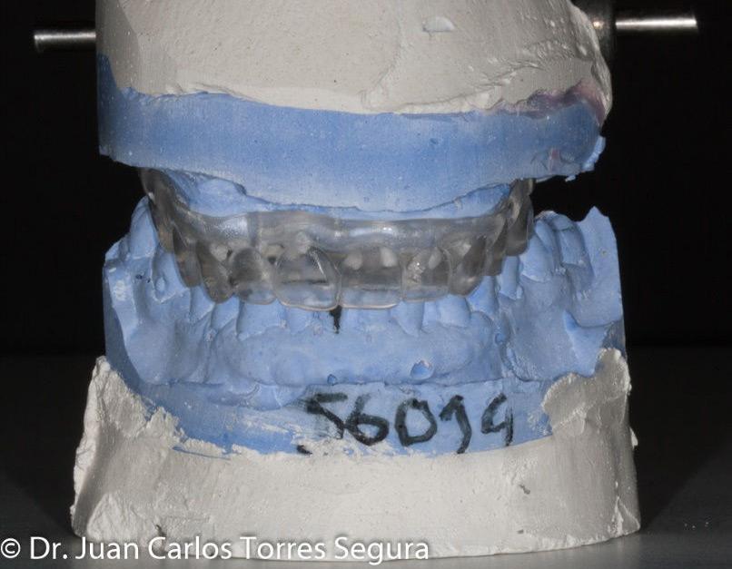 Férula quirúrgica