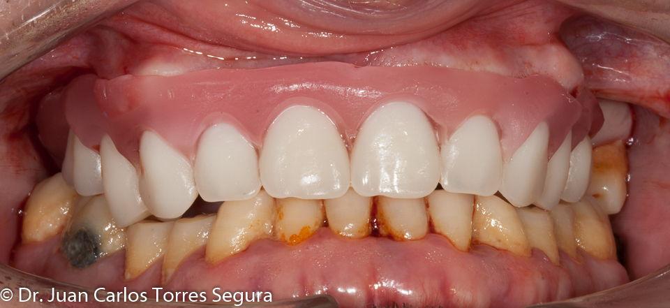 Prueba de dientes