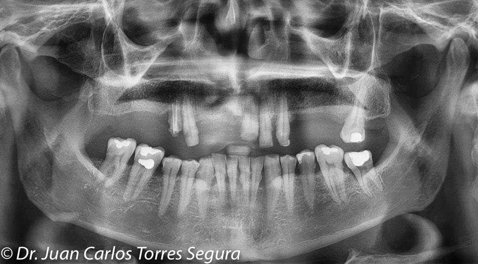 Radiografía inicial