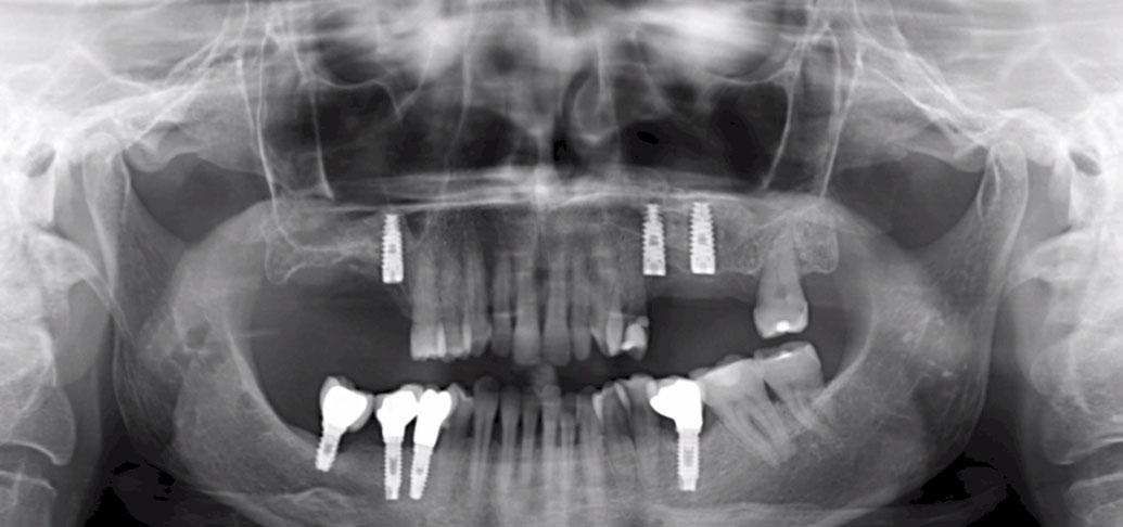 [VÍDEO] Cirugía de elevación del seno maxilar