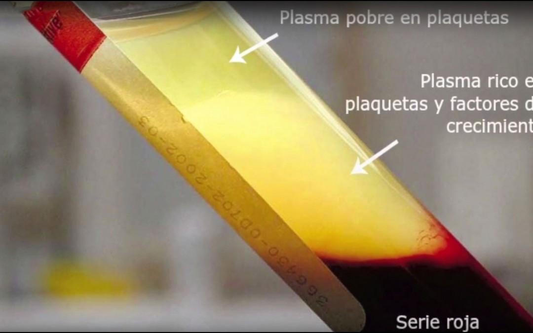 [VÍDEO] Plasma rico en fibrina para una mejor recuperación y cicatrización de heridas