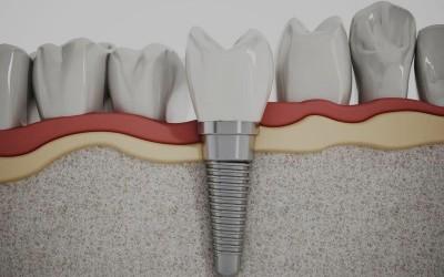 [Publicación científica] Implante post extracción con regeneración ósea y carga inmediata